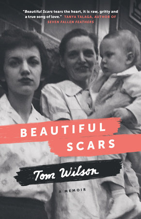 Beautiful Scars by Tom Wilson